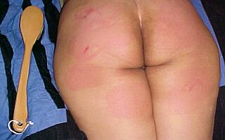 bethie's bottom after her bath brush spanking