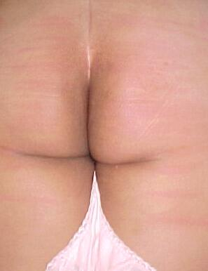red cane marks on Bethie's beautiful bottom