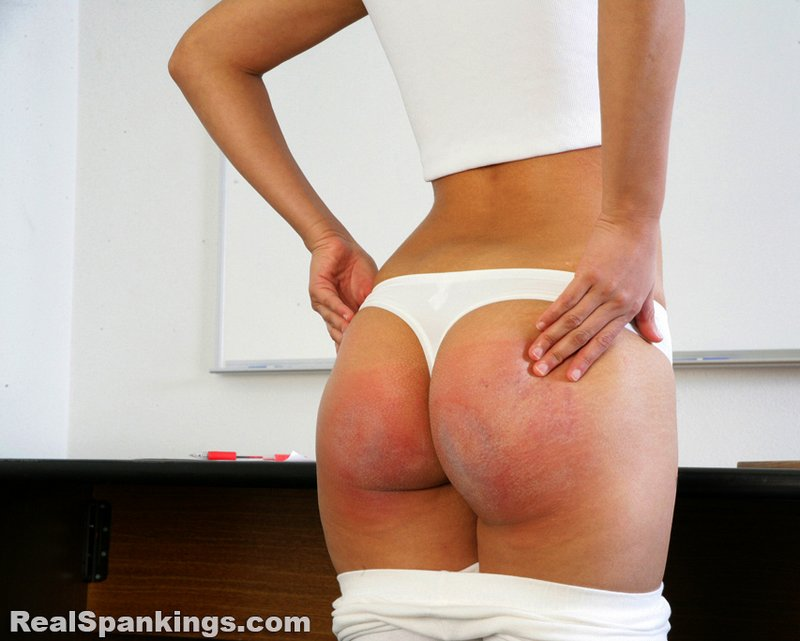 well-spanked and sore bottom