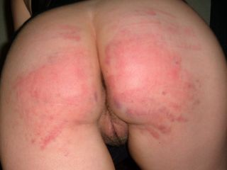 spanked bottom ready for some anal love